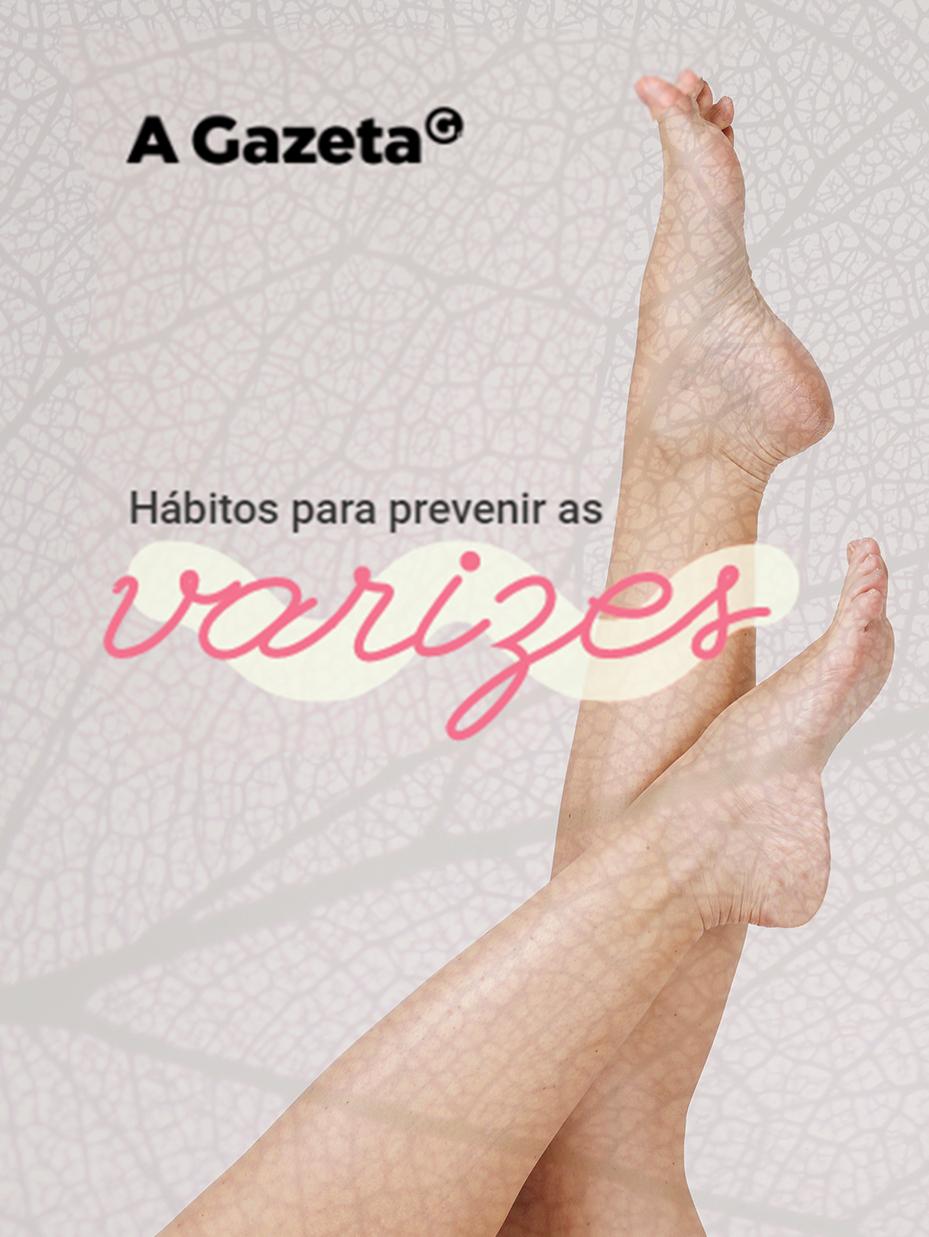 Conheça as dicas de como evitar o surgimento de varizes e vasinhos nas pernas.